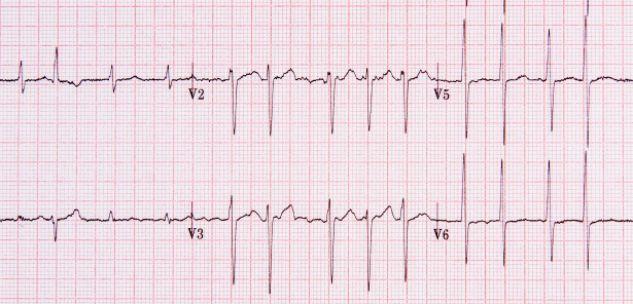 La Guida - Elettrocardiogramma gratuito a Fossano